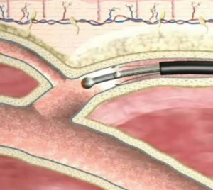 Chirurgia vascolare in Karaganda
