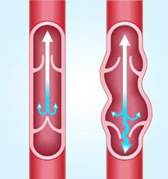 Esercizio per gambe a thrombophlebitis